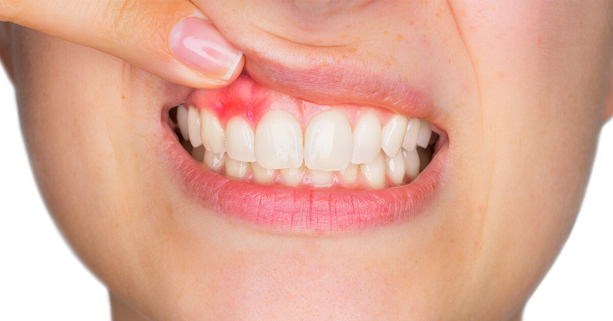 14 simple home remedies for treating swollen gums